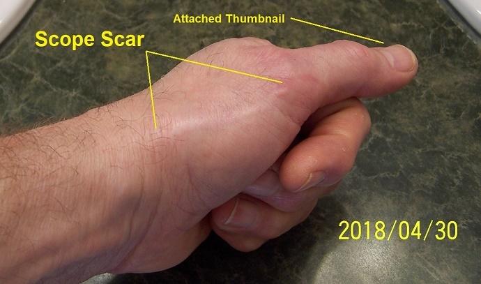 146 scope scar.jpg
