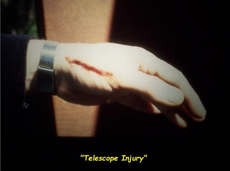 145 60 Toms telescope injury.jpg