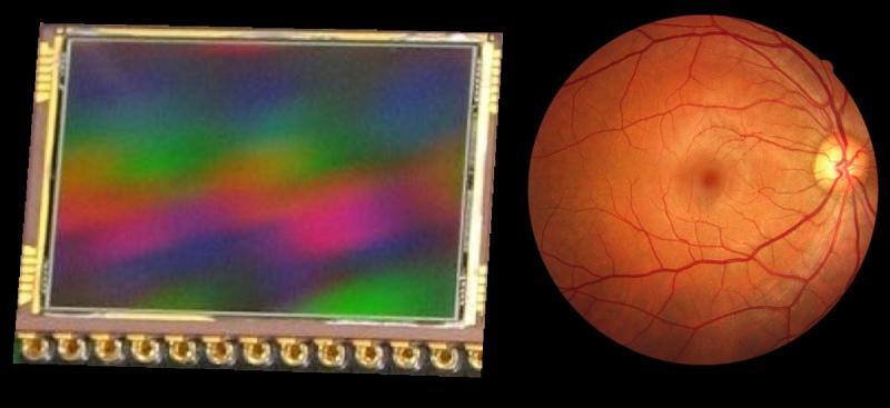 41 transducers CCD vs Retina.jpg