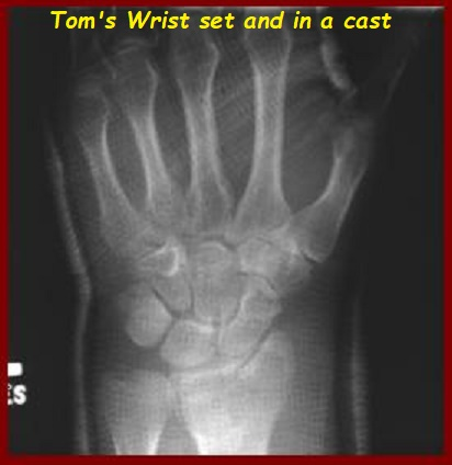273 Toms Demolished Wrist.jpg