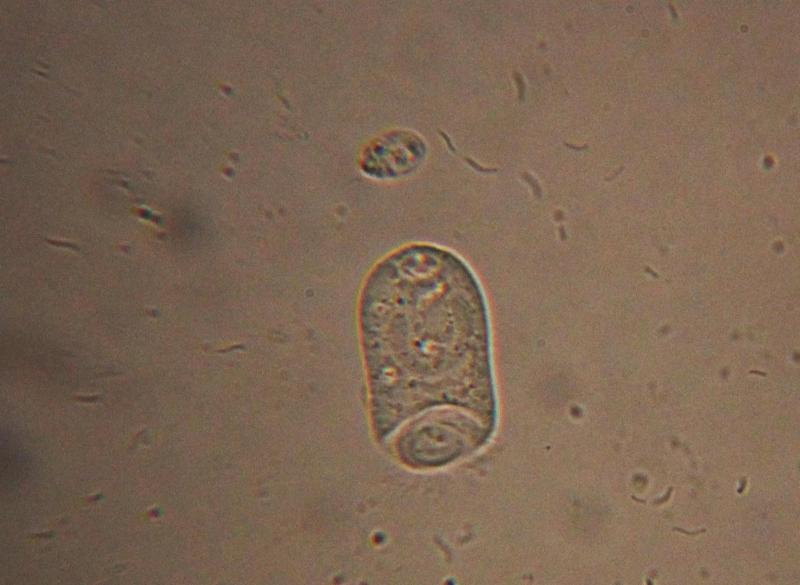 6269568-rotifer400x1 (Large).jpg